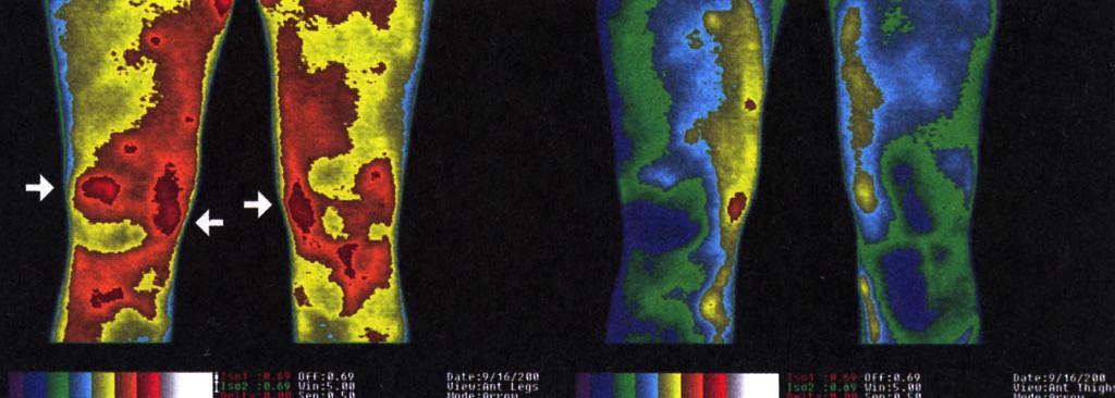 4. Сн.1 термална томография