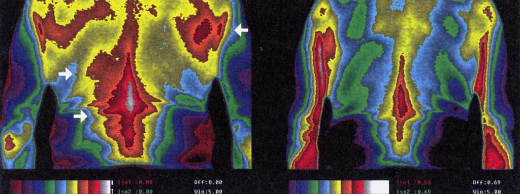 5 Сн. 2 термална томография