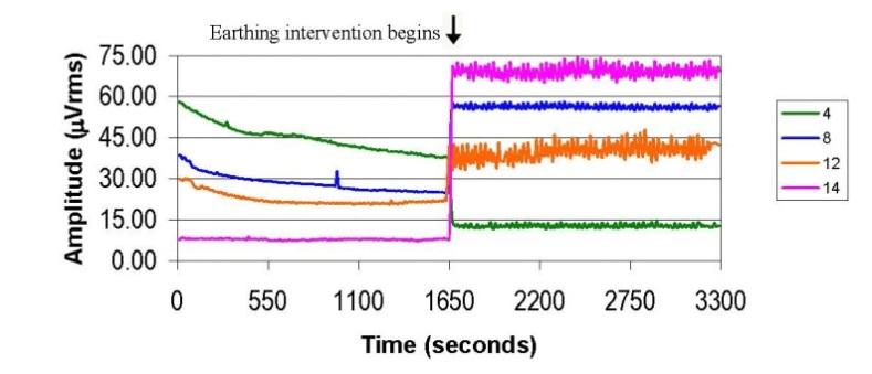 8 EEG диаграма